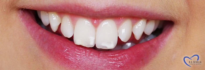 ¿ Qué es la fluorosis dental ?